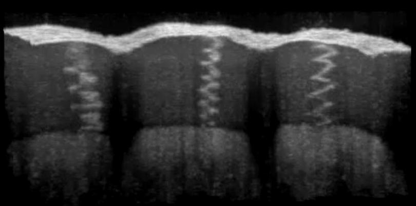 Spiral Anten Atlası Cildi ile İnsanın Frekanslarla İmtihanı